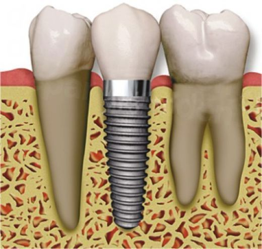 dd_201704241800_dental-implant.jpg