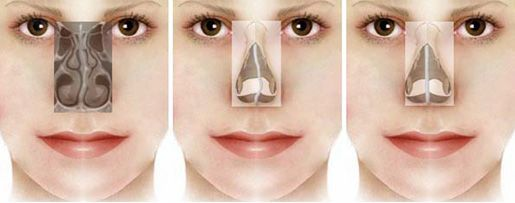 Image result for What is Rhinoplasty?