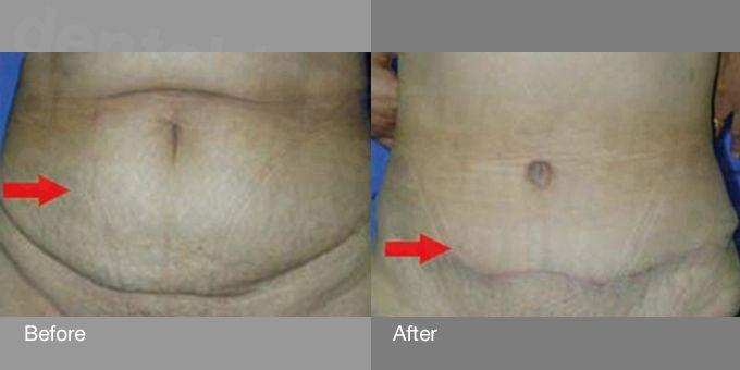 dd_201709210839_tummy-tuck-before-after-photo-2_0.jpg