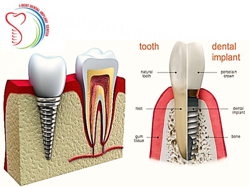 10 Best Dentists in Mexico for Dental Implants | Get a Quote