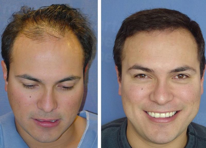 How Much Does Hair Transplant Cost In Thailand